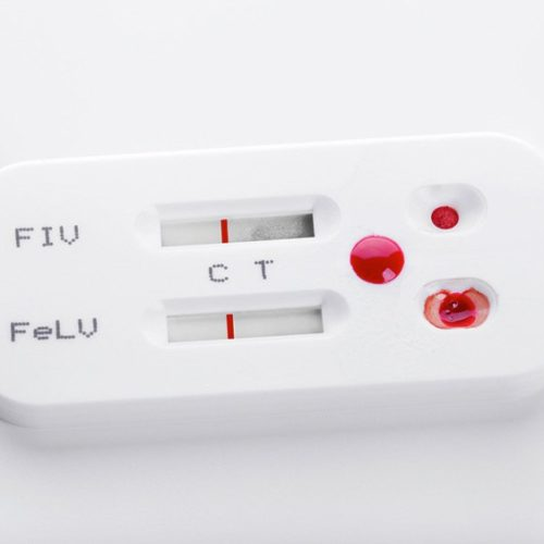 HIV Self-Test Kits Are Met With Apprehension in Kenya