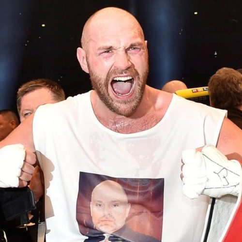 Boxing Champ Tyson Fury Kisses Gay Man To Prove He's Not Homophobic