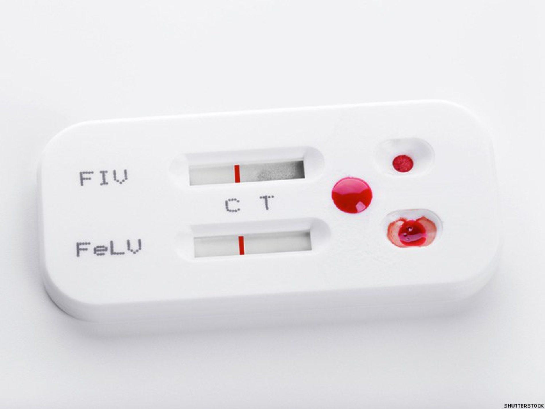 HIV Self-Test Kits Are Met With Apprehension in Kenya